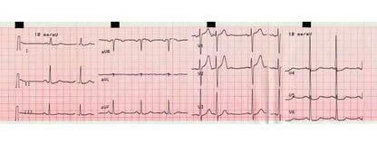 Electrocardiografia do batimento cardíaco Fotos de Stock