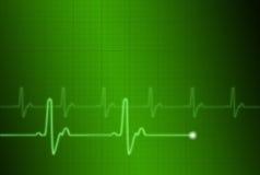 electrocardiogram 1 Royalty-vrije Stock Fotografie