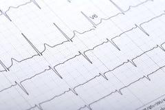 electrocardiogram fotografia de stock royalty free