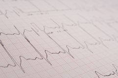 Electrocardiogram. A medical printout from an ecg machine measuring heart activity Stock Photography