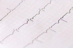Electrocardiogram Royalty Free Stock Photo