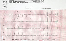 Electrocardiogram. The graphs of an electrocardiogram Royalty Free Stock Image