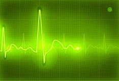 Electrocardiogram. Green Electrocardiogram, computer illustration, background Stock Photo