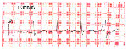 The electrocardiogram. The medical electrocardiogram of palpitation Stock Photography