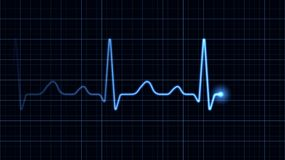 Electrocardiogram. On a blue screen Royalty Free Stock Photography