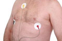 electrocardiogram Arkivfoto
