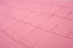 Electrocardiogram Royalty Free Stock Photos