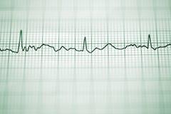 electrocardiogram imagem de stock royalty free