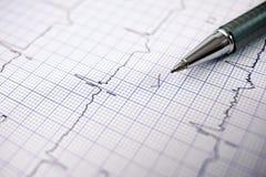 electrocardiogram foto de stock royalty free