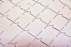 electrocardiogram Stock Afbeelding