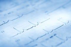 electrocardiogram fotos de stock