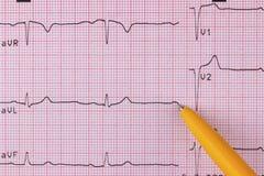 electrocardiogram Royaltyfria Foton