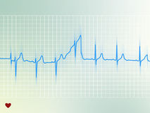 Electrocardiogram. Illustration of an electrocardiogram of a healthy heart beat Royalty Free Stock Photography