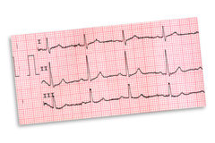 electrocardiogram imagem de stock