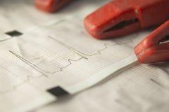 electrocardiogram Royaltyfri Bild