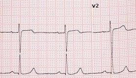 electrocardiogram imagens de stock royalty free