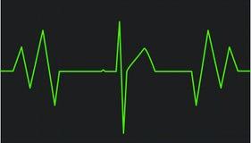 electrocardiogram vektor illustrationer