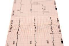 electrocardiogram Arkivbild