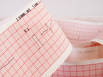 Electrocardiogram analysing for heart disease problem. Stock Images