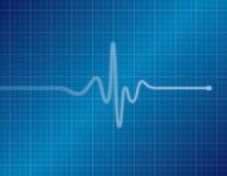 electrocardiogram - Blauw Stock Foto