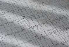Electrocardiogram chart as medical background royalty free stock images