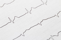 Electrocardiogram chart background. Close up of electrocardiogram chart background royalty free stock images