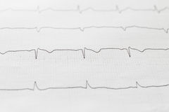 Electrocardiogram chart background. Close up of electrocardiogram chart background stock image