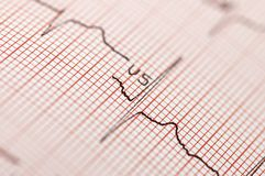 Electrocardiogram in close up Stock Images