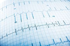 Electrocardiogram close up. Close up of an electrocardiogram in paper form royalty free stock image