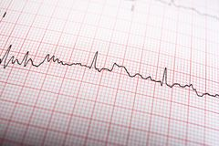 Electrocardiogram close up. Close up of an electrocardiogram in paper form stock photo