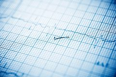 Electrocardiogram close up. Close up of an electrocardiogram in paper form royalty free stock photography