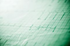 Electrocardiogram close up. Close up of an electrocardiogram in paper form stock image