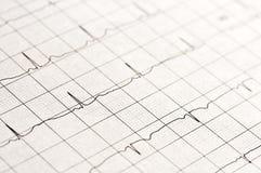 Electrocardiogram Stock Photos