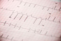 Electrocardiogram close up. Close up of an electrocardiogram in paper form royalty free stock images