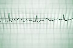 Electrocardiogram Royalty Free Stock Image