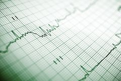 Electrocardiogram Royalty Free Stock Photo