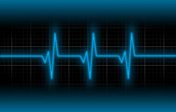 Electrocardiogram - Concept of healthcare Stock Image