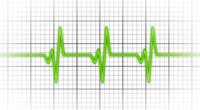 Electrocardiogram - Concept of healthcare Stock Images