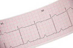 Electrocardiogram. Diagnosis of diseases of the heart - the electrocardiogram Royalty Free Stock Photo