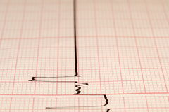 Electrocardiogram ecg Royalty Free Stock Photography