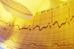 Electrocardiogram-ECG Stock Photo
