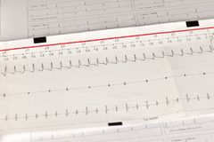 Electrocardiogram ECG / EKG with cardiac arrhythmia royalty free stock images