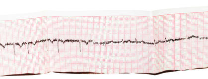 Electrocardiogram (ECG, EKG) on paper Royalty Free Stock Images