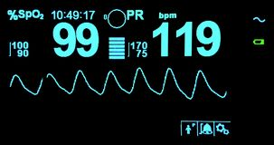 Electrocardiogram ecg in hospital surgery operating emergency room showing patient heart rate, health care. Medical stock video