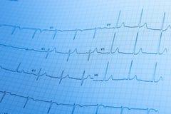 Electrocardiogram/ECG impresso no papel de gráfico Fotos de Stock