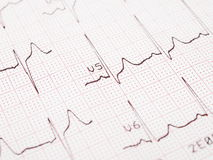 Electrocardiogram, ECG printout Royalty Free Stock Photo