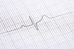 Electrocardiogram graph Stock Photo