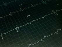 Electrocardiogram graph Stock Image