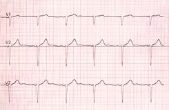 Electrocardiogram graph on paper Royalty Free Stock Images