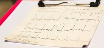 Electrocardiogram graph on the patient chart and waiting doctor to check the symptoms of the patient again. Primary care in ER. Stock Photos